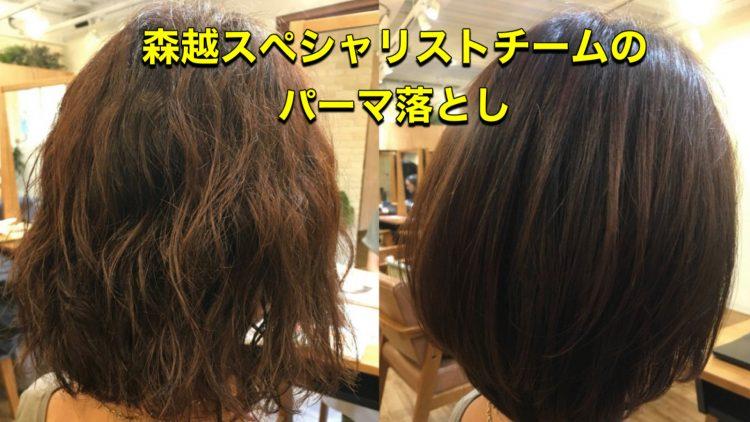 毛 値段 縮 矯正
